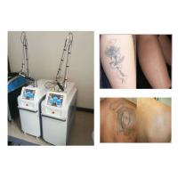 Buy cheap CE Approved ND YAG Laser Tattoo Removal Machine For Laser Pigmentation Removal product