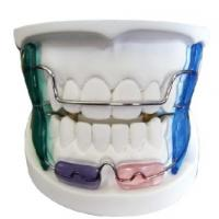 Buy cheap LRM Activator Fixed Functional Orthodontic Appliances For Crooked Teeth Improve Tonicity product