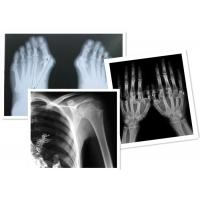Quality Thermal Digital X Ray Film Fuji Medical For Radiography Examination for sale