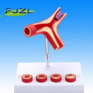Buy cheap Modelo de la arteriosclerasis con el trombo product