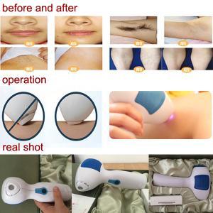 Buy cheap Uso en el hogar del laser del diodo 808nm del retiro permanente del pelo de la tecnología de Corea MINI product