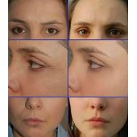 Buy cheap 100%pure Hyaluronic acid filler for Derm deep wrinkle product