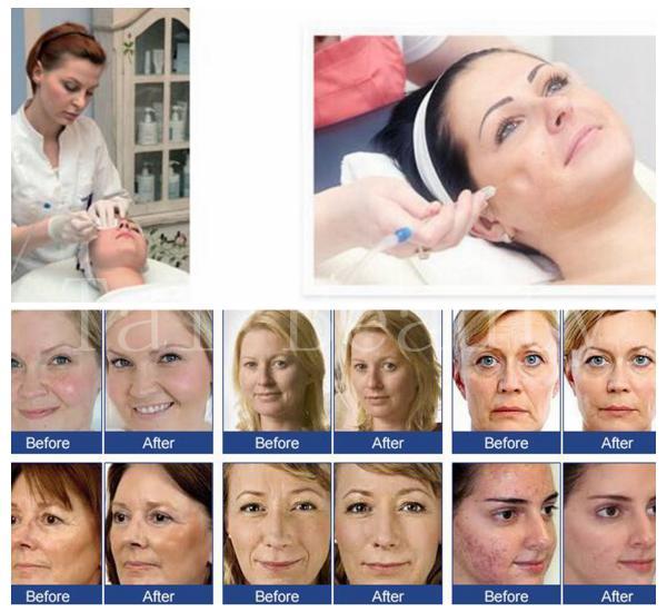 Burned Skin Treatment Natural Treatments