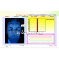 UV Skin Scanner And Analyzer RGB UV light skin analyzer BS-1200P