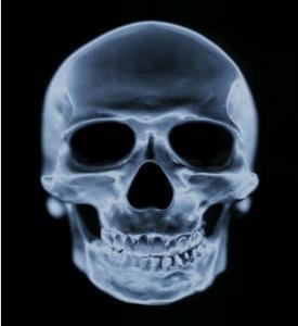 China Medical Dry Imaging Film Scan Film , CT Laser Agfa Fuji X-Ray Film on sale