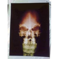 Quality medical dry film,mobile digital x ray film for sale