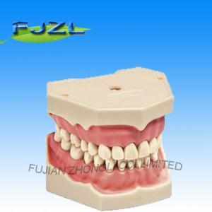 Buy cheap модель зубов тыподонт с съемными зубами винта product