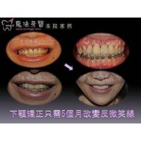Buy cheap Teeth Correction product