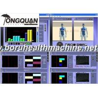 Buy cheap Hot Sale General Body Health Analyzer Eagle eye detector product